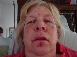 lupus-face2