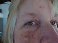 open-eye-sores
